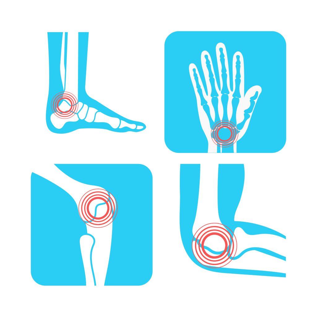 Joint Pain Vectors Pack